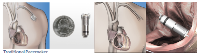 Figure 2.  Comparison of traditional transvenous pacemaker system with MICRA leadless system – comparable to the size of a quarter- now placed in the bottom right ventricle of the heart with tines securing its position without the need for a wired system and traditional pacemaker placed in the upper chest.
